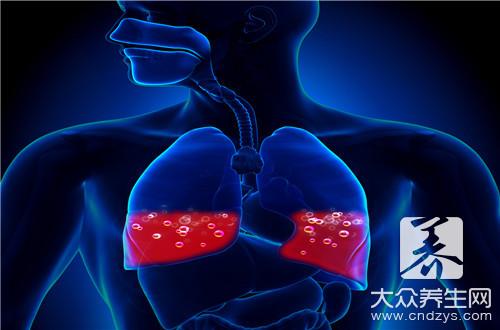 Can tuberculosis kiss