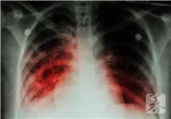 肺部ct怎么看图解