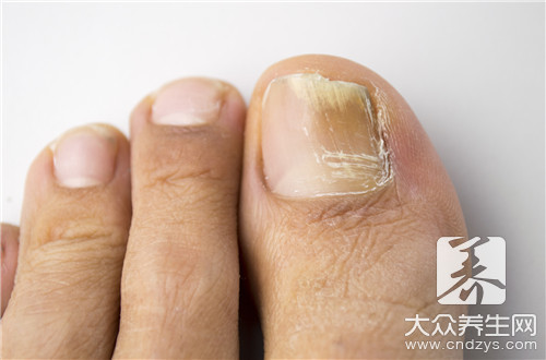 Ringworm of the nails of doctor of traditional Chinese medicine
