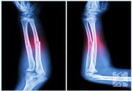 左手桡骨骨折怎么护理