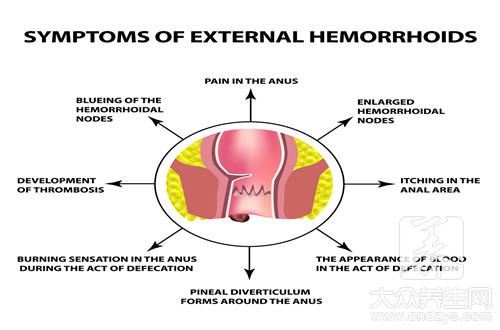 External piles gall a few days can subsidence of a swelling