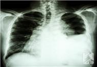 少量胸腔积液怎么消除