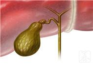 治疗肝胆湿热的中成药有哪些?