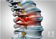 强直性脊柱炎新药