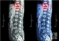 脊髓损伤分级法