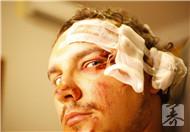 脑室穿刺引流术后怎么护理