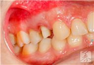 牙疼什♀么不能吃?