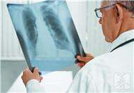 """肺部发生癌变,手上三处""""感觉""""比较强烈,若全没有,肺还很健康"""