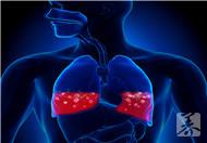 儿童肺动脉瓣轻度返流
