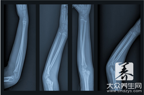 Ilium takes bone skill