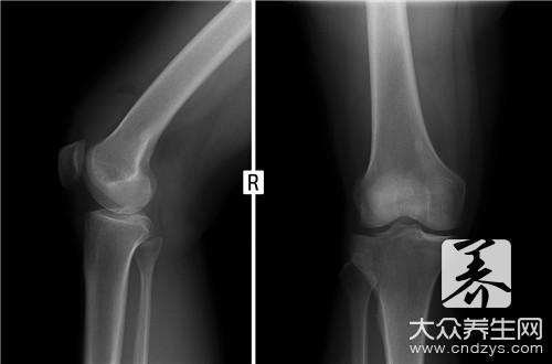 创伤骨科和骨科的区别
