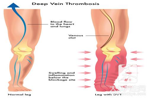 What is vein convulsion