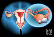 卵巢癌的病死率极高,早期有4个不典型症状,如何识别?