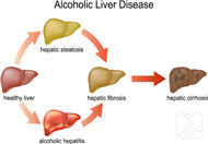 肝內實性結節是什么病