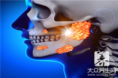 腮腺炎疼痛怎么缓解