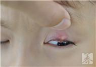小孩上眼皮红肿