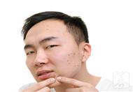 罗红霉素治疗痤疮吗