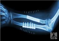 骨莫炎的症状是什么?