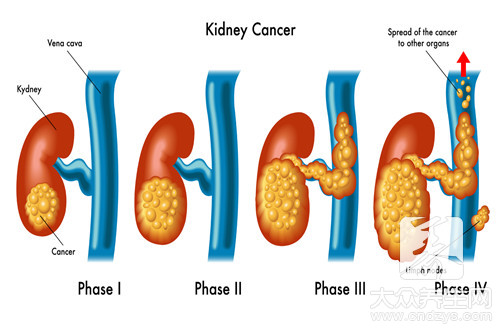 The point of kidney classics