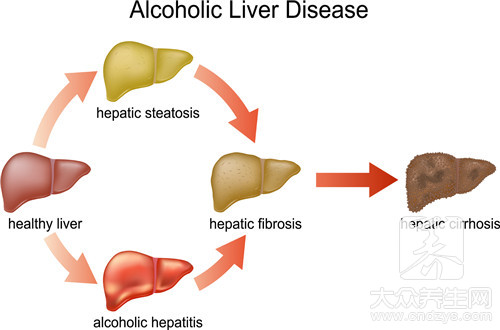 The distinction of liver deficiency of yang and liver deficiency of yin with irritability