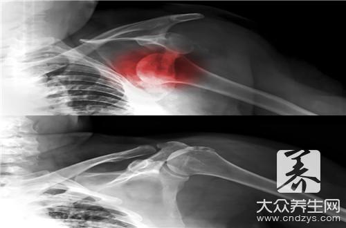 骨折后骨质疏松正常吗