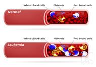 血小板高是白血病吗
