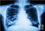 70岁肺癌晚期能活多久