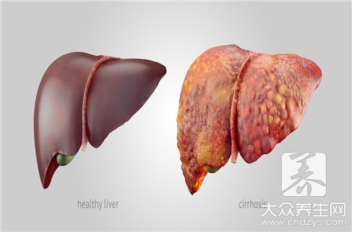 What is liver ministry enhances Ct to check