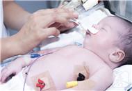 新生儿肚脐渗血怎么办