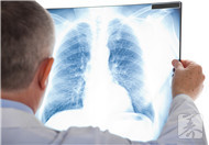 肺部感染不能吃什么