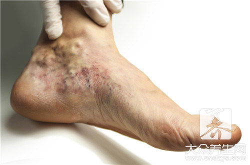 The feature of phlebitis