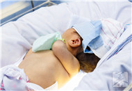 新生儿肝炎性黄疸症状