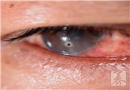 左眼跳一周怎么回事儿?
