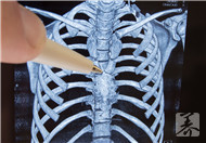 第七胸椎怎么找